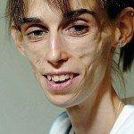 фото анорексія як захворіти