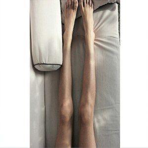 Анорексія у чоловіків, фото, відео