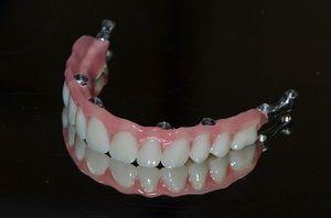 Базальна імплантація зубів: як виконується, плюси і мінуси