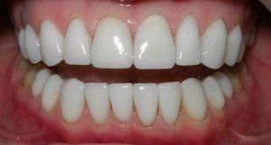 Ціни на імплантанти та вартість імплантації зубів