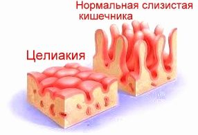 Целіакія у дорослих, симптоми 300 клінічних проявів!