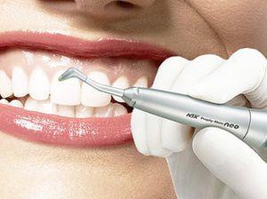 Ціни на професійну чистку зубів ультразвуком