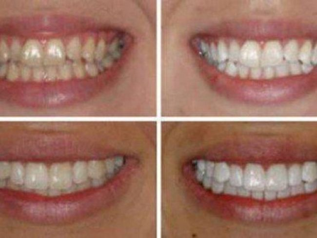Відбілювання зубів в стоматології: скільки це коштує