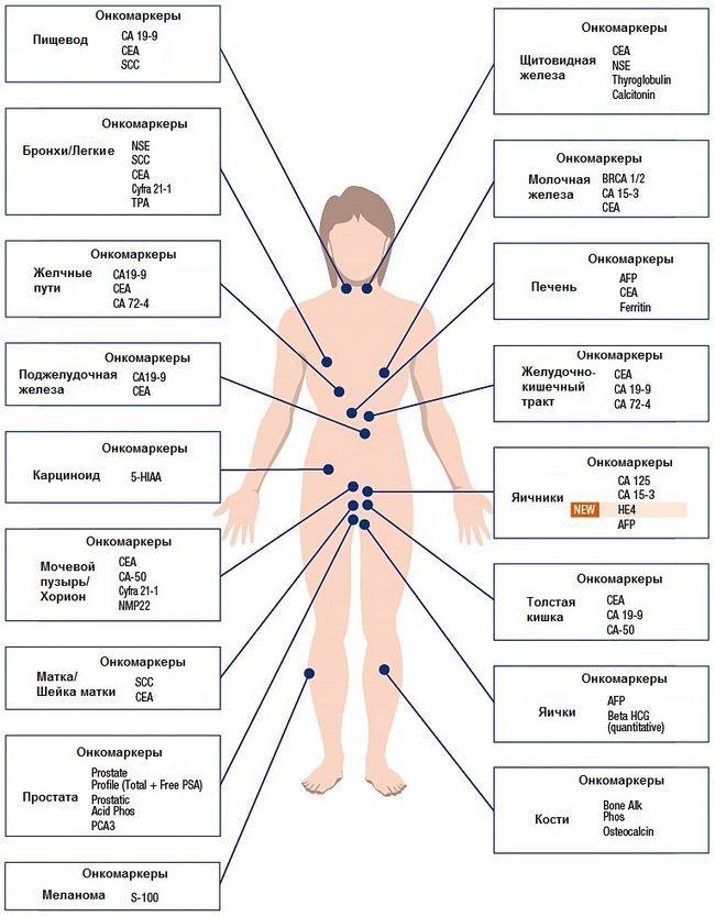 Що показує аналіз крові на онкомаркери? Територія помилок