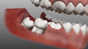 Що таке дістопірованних і ретінірованний зуб мудрості?
