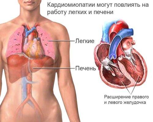 Діагностика і лікування дисгормональной кардіоміопатії