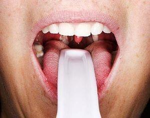 Фарингіт - симптоми і лікування у дорослих, фото