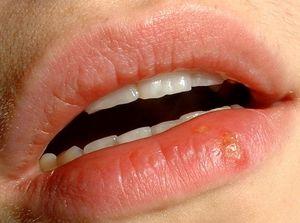 Герпес на губах - як вилікувати болячку