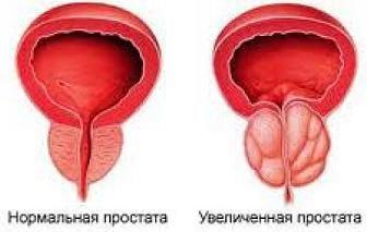Хронічний простатит симптоми