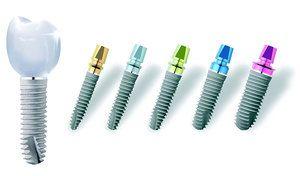 Опис властивостей зубних імплантів Ankylos