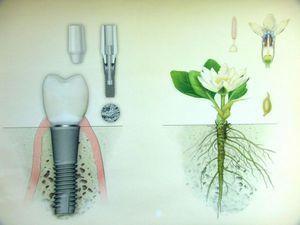 Види імплантації зубів