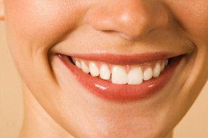 Особливості імплантації зубів під ключ