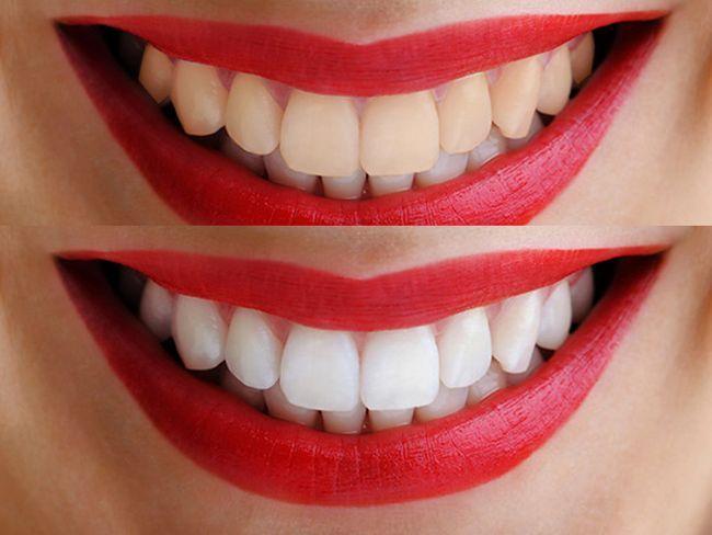 Суть системи відбілювання зубів zoom