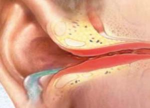 Які хвороби вуха у людини відомі медицині
