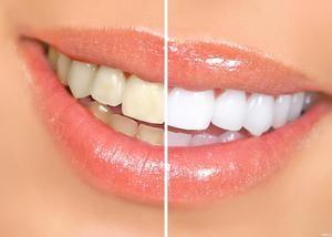 Яке відбілювання зубів дає кращі результати: відгуки