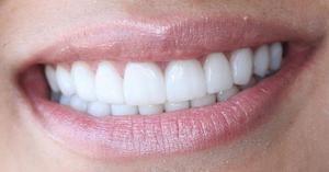 Композитні вініри на передні зуби і відгуки з фото