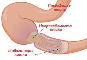 Механічна кишкова непрохідність, класифікація, симптоми, лікування. Відео