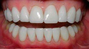 Чи можна в москві вставити недорого зуб, і що впливає на ціну