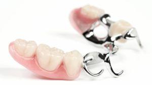 Нове покоління зубних протезів без неба