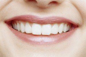 Скільки коштує вставити передній і інші зуби?
