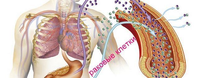 Нові онкомаркери шлунково-кишкового тракту: кишечника і шлунка запропоновані європейською групою
