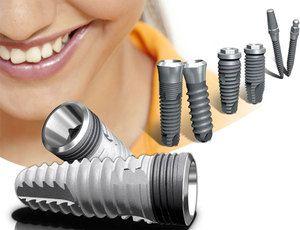 Відгуки про міні-імплантатах і лазерної імплантації зубів
