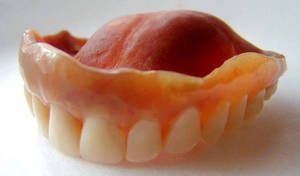 Види і типи конструкцій незнімних зубних протезів