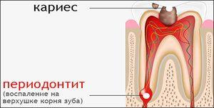 Періодонтит зуба: види, діагностика та ускладнення