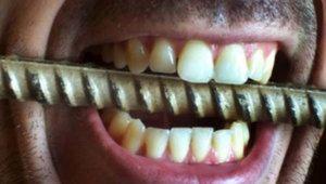 Чому люди скриплять зубами уві сні?