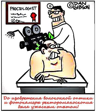 Ректороманоскопія кишечника, що це таке, відмінності від колоноскопії, відео