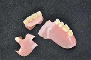 Склеювання в домашніх умовах зубного протеза, штучного зуба