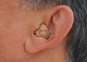 Слухові апарати для літніх людей: як вибрати, де купити