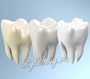 Засоби для домашнього відбілювання зубів