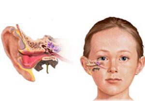 Вушні краплі для дітей отипакс з антибіотиком