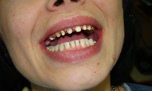 Установка металокерамічної коронки на передній зуб
