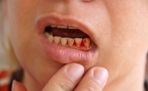 Можливі ускладнення і протипоказання до імплантації зубів