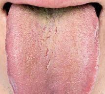Зелений наліт на мові: причини, діагностика та лікування
